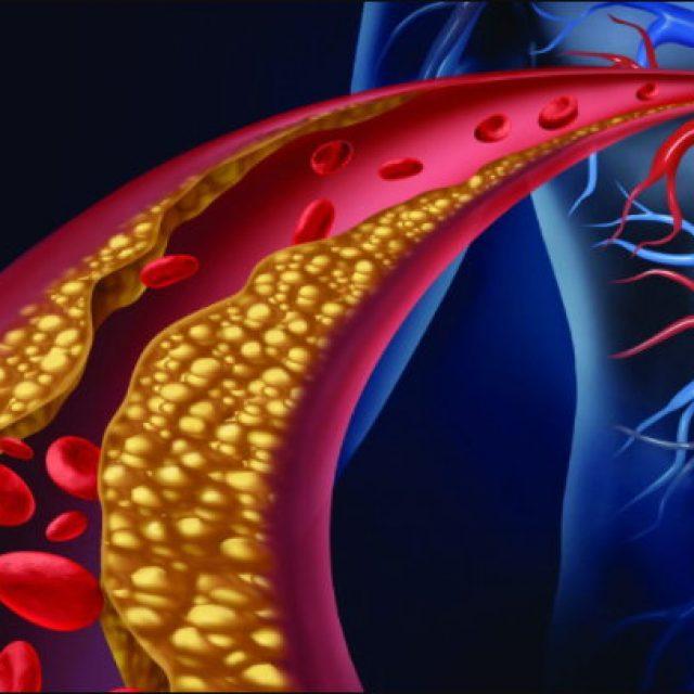 Entenda o que é a arteriosclerose